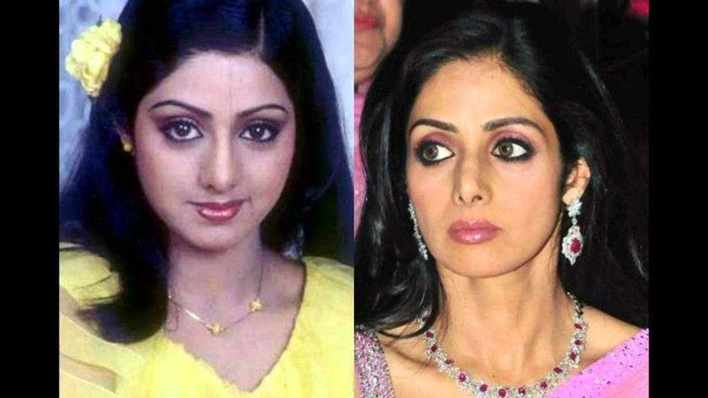 Sridevi before and after facial therapies